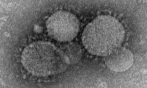 Undated handout photo of Novel coronavirus particles as seen by negative stain electron microscopy in this undated Centers for Disease Control and Prevention (CDC) photo. Cynthia Goldsmith/Maureen Metcalfe/Azaibi Tamin/Centers for Disease Control and Prevention/Handout via Reuters