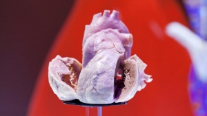 A plastinated human heart is on display at the European Society of Cardiology meeting venue in Amsterdam September 2, 2013. REUTERS/Cris Toala Olivares/Files