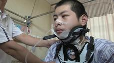 Chinese boy implanted with 3D-printed vertebra