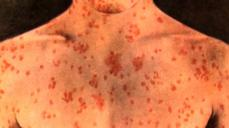 CDC: Get vaccinated for measles