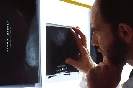 A doctor examines a mammogram in an undated photo from the National Cancer Institute. Women who are told their mammogram shows a possible cancer that turns out to be a false alarm are likely to suffer anxiety for a long time, according to a new study. REUTERS/Handout