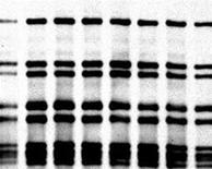 <p>A DNA fingerprint in an undated image. REUTERS/File</p>