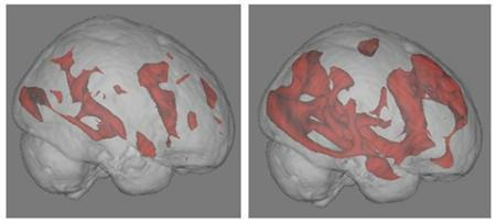 Two functional MRI brain scans show how searching the Internet dramatically engages brain neural networks (in red). The image on the left displays brain activity while reading a book; the image on the right displays activity while engaging in an Internet search. REUTERS/UCLA/Handout
