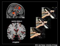 <p>When youths with aggressive conduct disorder watch an individual intentionally hurting another (like closing a piano lead), regions of the brain that process painful information are activated, as well as the amygdala and ventral striatum (part of the neural circuit involved in reward processing. REUTERS/Jean Decety, University of Chicago/Handout</p>