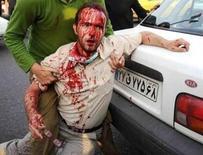 <p>Мужчина раненный во время демонстрации оппозиции в Тегеране на фотографии, опубликованной 21 июня 2009 года. Страны Евросоюза рассматривают способы наказать Иран за жестокое обращение с оппозицией после президентских выборов, включая скоординированный вызов послов с отчетом и запрет на выдачу виз иранским чиновникам, сообщили дипломаты. REUTERS via Your View</p>