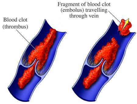 Two views of a section of typical vein and valve are seen in this undated handout photo. In the fist image a blood clot (thrombus) is seen forming in the valve region. In the second image a fragment of the blood clot is shown breaking off and traveling through the vein (embolus). REUTERS/Newscom/Handout