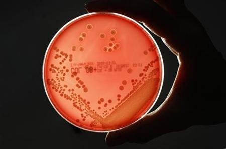 MRSA (Methicillin-resistant Staphylococcus aureus) bacteria strain is seen in a petri dish containing agar jelly for bacterial culture in a microbiological laboratory in Berlin March 1, 2008. REUTERS/Fabrizio Bensch