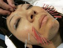 <p>Женщина во время сеанса иглоукалывания в Токио 20 мая 2008 года. Бактериальные инфекции, гепатит B и С, возможно даже ВИЧ, могут попасть в организм человека при процедуре иглоукалывания, считают эксперты. REUTERS/Yuriko Nakao</p>