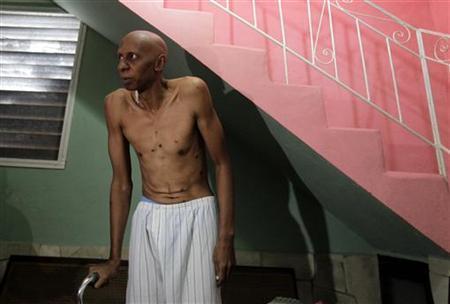 Cuban dissident Guillermo Farinas shows his body to reporters in his home in Santa Clara, central Cuba March 5, 2010. REUTERS/Desmond Boylan
