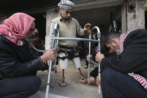 New limb, new life in Syria
