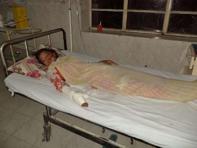 Saba Maqsood, 18, lies on a hospital bed in Hafizabad in Punjab Province June 5, 2014.  REUTERS/Yaqoob Shahzad