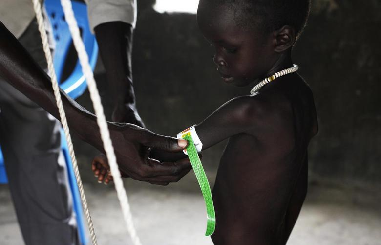 A malnourished child is weighed at the Medecins Sans Frontieres (Doctors Without Borders, MSF) feeding centre in Leer, Unity State, July 16, 2014.  REUTERS/Andreea Campeanu