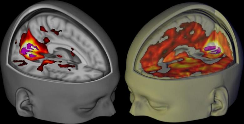 The brains of subjects lying awake with their eyes closed, under a placebo (L) and the drug LSD (R), are seen when being examined using functional MRI, in this handout image from Imperial College London and The Beckley Foundation. Scientists have for the first time scanned the brains of people using LSD and found the psychedelic drug frees the brain to become less compartmentalised and more like the mind of a baby. REUTERS/Imperial College London-The Beckley Foundation/Handout via Reuters