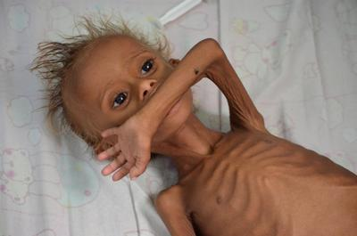 Starving children of Yemen