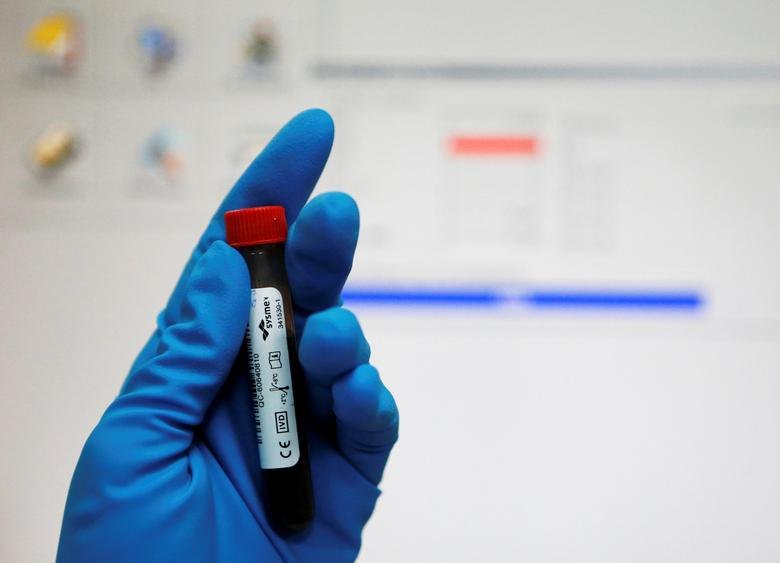 A technician holds a test tube with a blood sample at the Russian anti-doping laboratory in Moscow, Russia, May 24, 2016. REUTERS/Sergei Karpukhin/File Photo