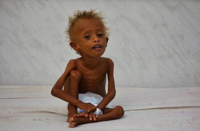 Salem Abdullah Musabih, 6, sits on a bed at a malnutrition intensive care unit at a hospital in the Red Sea port city of Hodaida, Yemen September 11, 2016. REUTERS/Abduljabbar Zeyad