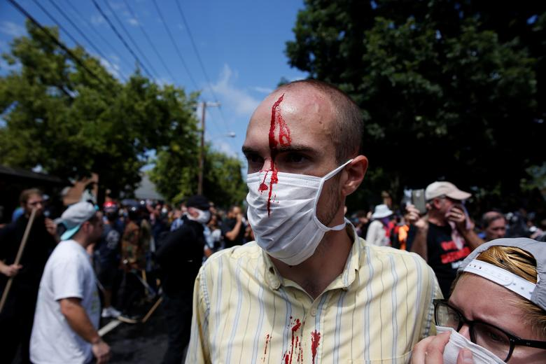 A man is seen with an injury during a clash between members of white nationalist protesters against a group of counter-protesters. REUTERS/Joshua Roberts