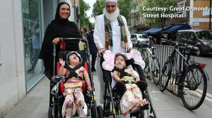 Doctors reveal how they separated two-year-old conjoined twins