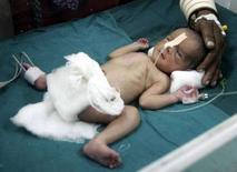<p>Выпавшая через отверстие унитаза поезда новорожденная девочка в больнице индийского города Ахмадабад 28 февраля 2008 года. Выпавший через отверстие унитаза новорожденный ребенок чудом остался жив после того, как его мать родила прямо в туалете одного из индийских поездов во вторник. (REUTERS/Amit Dave)</p>