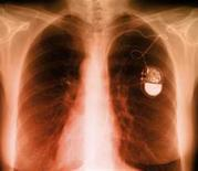 <p>A pacemaker is seen in an X-ray in an undated image. REUTERS/FDA/Handout</p>