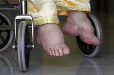 <p>The feet of Lim Guan Siew are seen as she sits on her wheelchair while speaking to Reuters at her home in the Malaysian town of Sekinchan, 90 km (56 miles) northwest of Kuala Lumpur May 23, 2010. REUTERS/Bazuki Muhammad</p>