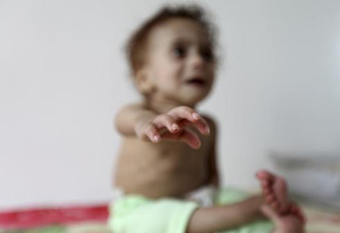 Hunger in Yemen
