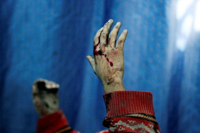 Blood covers the hands of an injured boy lying in a field hospital after what activists said were air strikes by forces loyal to Syria's President Bashar al-Assad in the Douma neighborhood of Damascus February 6, 2015.  REUTERS/ Mohammed Badra