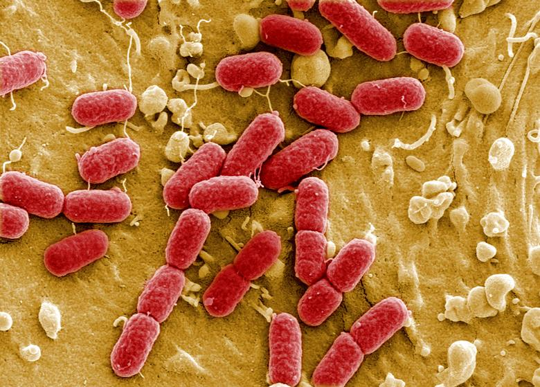 FILE PHOTO: An undated image taken with electronic microscope shows EHEC bacteria (enterohaemorrhagic Escherichia coli) in Helmholtz Centre for Infection Research in Brunswick, Germany.  REUTERS/Manfred Rohde/Helmholtz-Zentrum fŸr Infektionsforschung (HZI)/File Photo