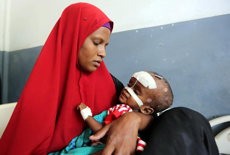An internally displaced Somali woman holds her malnourished child fitted with a nasogastric tube inside a ward dedicated for diarrhoea patients at the Banadir hospital in Mogadishu, Somalia. Somali mothers are facing an agonizing choice over how to divide their shrinking food supply among hungry children as a devastating drought kills off livestock and leaves the Horn of Africa nation facing the possibility of famine. REUTERS/Feisal Omar