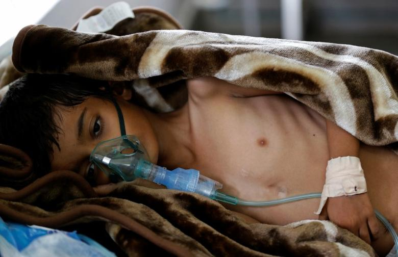 An eight-year-old malnourished boy lies on a bed in the emergency ward of a hospital in Sanaa, Yemen September 27, 2016. REUTERS/Khaled Abdullah/Files