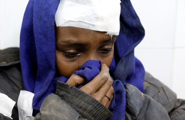 A migrant who was injured in a truck crash reacts at a hospital in Bani Walid town, Libya, February 14, 2018. REUTERS/Hani Amara