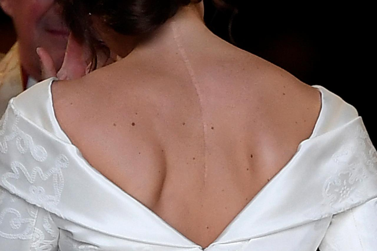 Princess Eugenie Shows Off Back Scar In Peter Pilotto Wedding