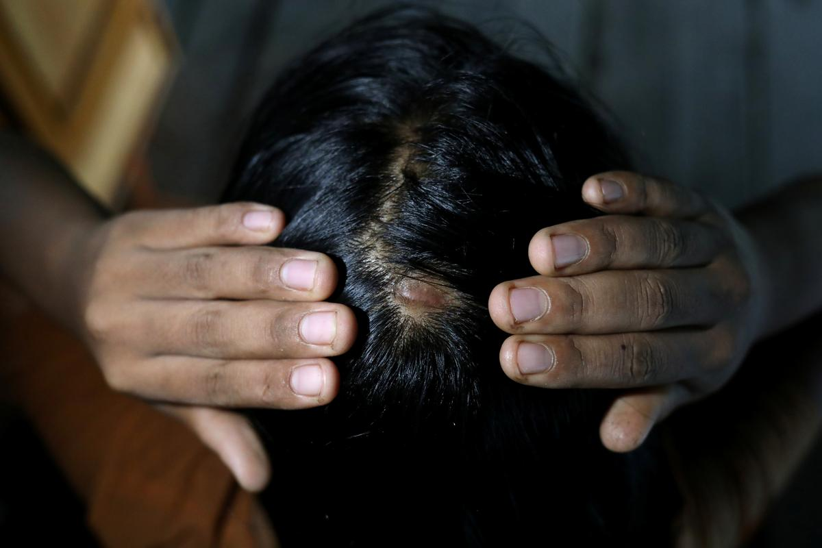 'Until her bones are broken': Myanmar activists fight to outlaw domestic violence