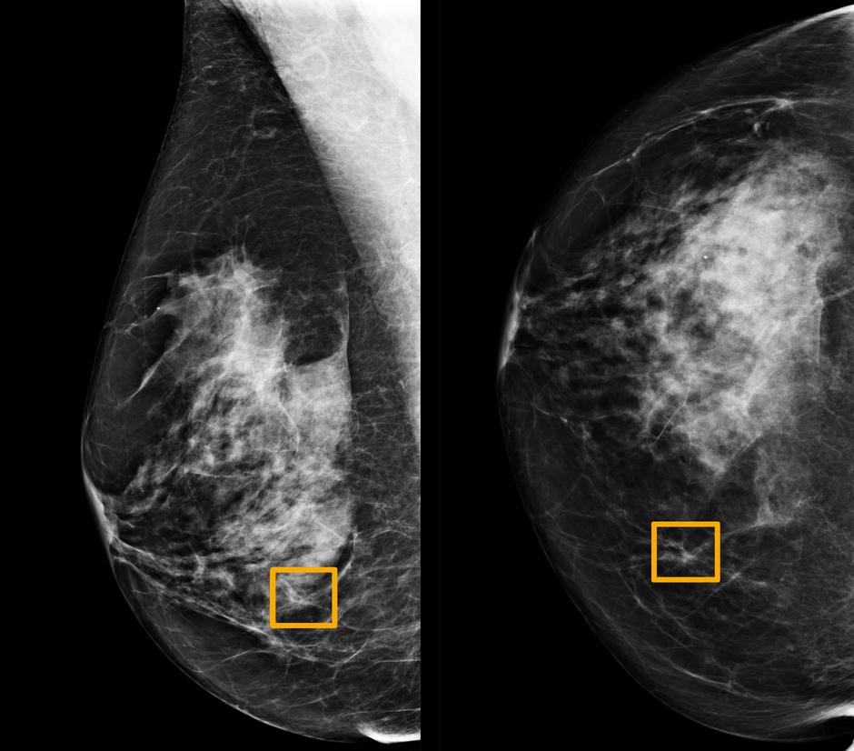 Study finds Google system could improve breast cancer detection - Reuters. Machine Learning In Medicine