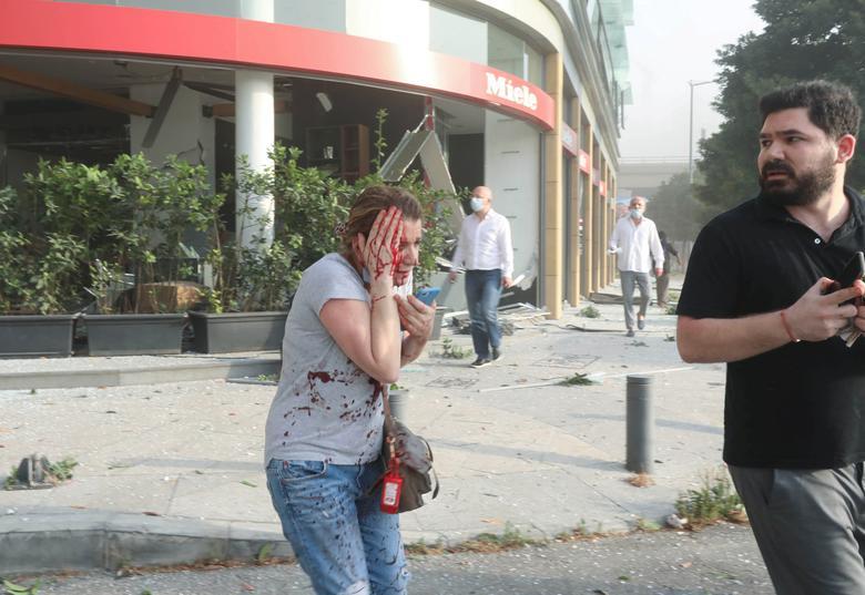 Una mujer herida es vista después de una explosión en Beirut, Líbano, 4 de agosto de 2020. REUTERS / Mohamed Azakir