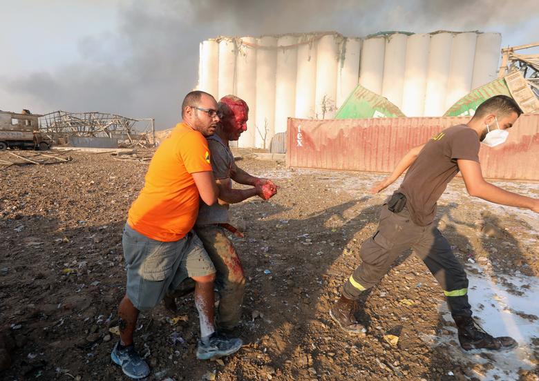 Un hombre herido recibe ayuda tras una explosión en Beirut, Líbano, 4 de agosto de 2020. REUTERS / Mohamed Azakir